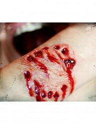 Herida mordedura