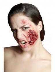 Herida mejilla infectada
