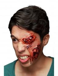 Herida en el ojo