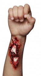 Herida abierta brazo